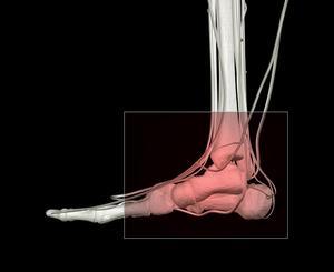 Quelles sont les causes peau rouge sur les pieds et les chevilles ?