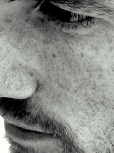 Comment prévenir ou provoquer la couperose sur le visage