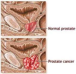 Les effets secondaires de la radiothérapie pour le Cancer de la Prostate