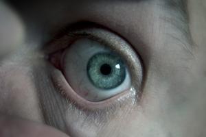 Ce qui provoque des dépôts de calcium dans les yeux ?