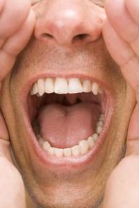 Comment réparer l'émail sur les dents