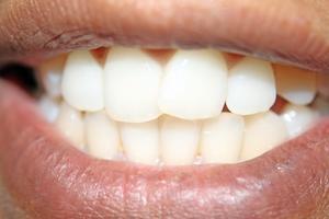Risques pour la santé d'une brosse à dents Sonicare