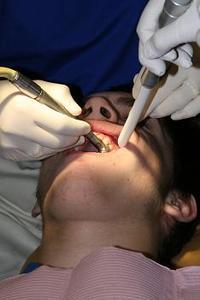 Comment réparer les dents pourries