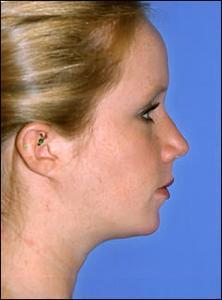 Procédures de chirurgie sous-occlusion