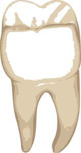 Comment faire pour coller un bouchon sur une dent
