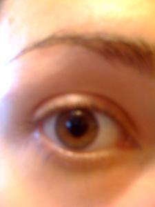 Comment traiter l'irritation des yeux rouges