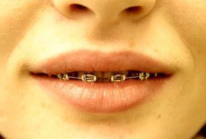 Façons de payer pour l'unité dents