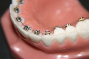 Histoire d'accolades derrière les dents