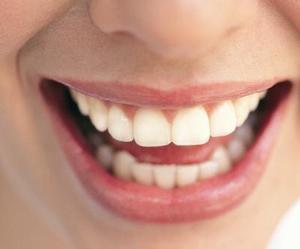 Comment faire pour redresser les dents sans bretelles
