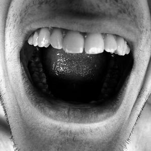 Quelles sont les Causes de la salive acide ?
