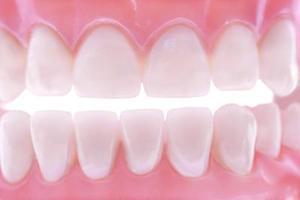 Comment blanchir les dents avant & après prothèses dentaires