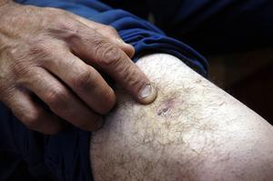 Comment prévenir les hématomes si facilement