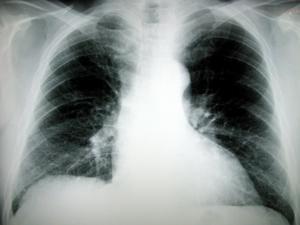 Causes des nodules pulmonaires