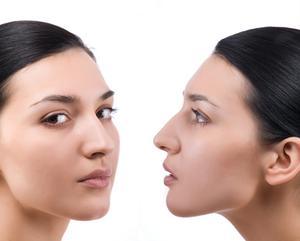 Exercices de symétrie faciale