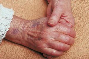Signes & symptômes du myélome de stade de fin