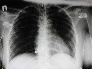 Comment faire pour le suivi des Nodules du poumon CXR