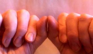 Ascidie doigts et maladies cardiaques