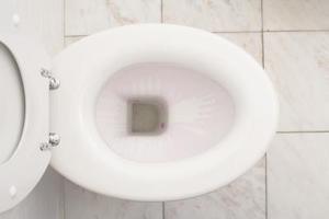 Bactéries dans la cuvette des toilettes