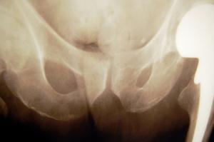 Quels sont les symptômes d'un coccyx meurtri ?