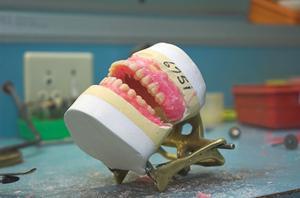 Comment manger avec nouvelles fausses dents