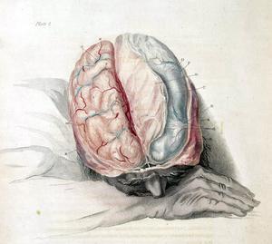 Quels Types d'arthrite provoque des maux de tête ?