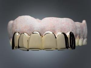BRICOLAGE colle pour dentier