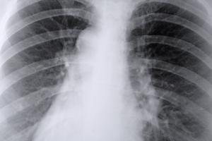 Signes & symptômes de parasites du poumon chez l'homme