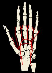 Quelles sont les Causes d'un engourdissement dans la main ?