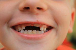 Dents de requin chez les enfants