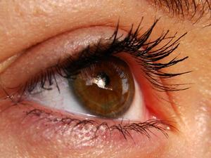 fatigue oculaire symptome